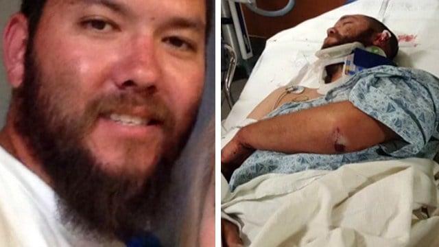 Steven Richardson was left with a skull fracture. (Source: KPHO/KTVK)